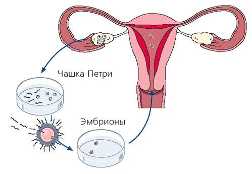 синтетическое, шерстяное эко при эндометриозе у кого получилось мужское нужно подбирать
